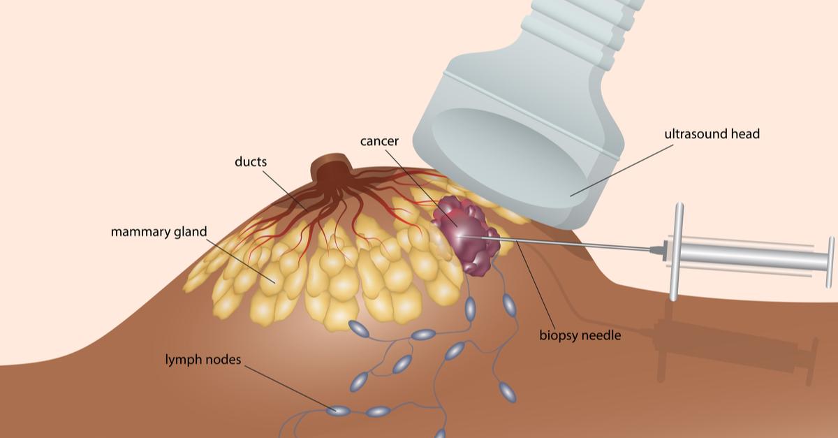 Biopsie mamara