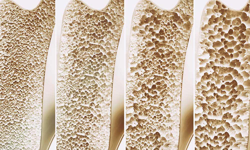Osteoporoza.jpg