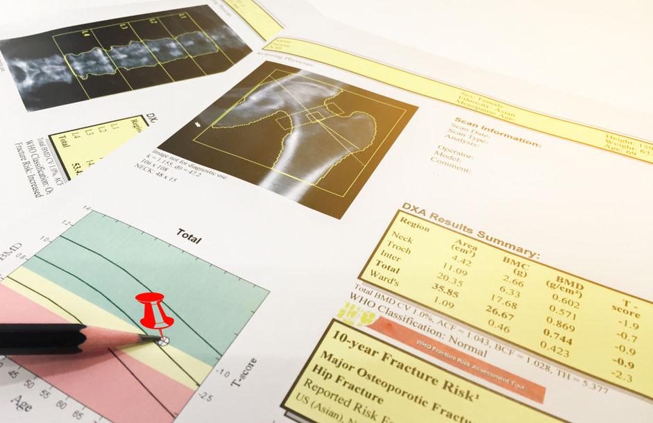 Osteodensitometrie (DEXA)